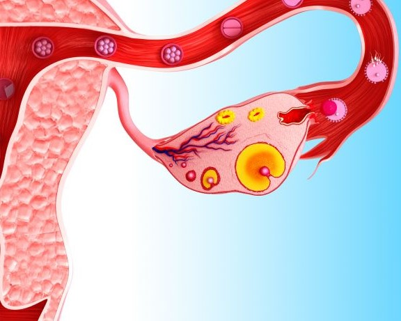 Anovulación - ¿Qué es? Causas, Diagnóstico y Tratamiento